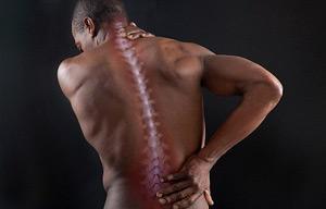 Симптоми забитого хребта такі ж, як і у інших травмах спини
